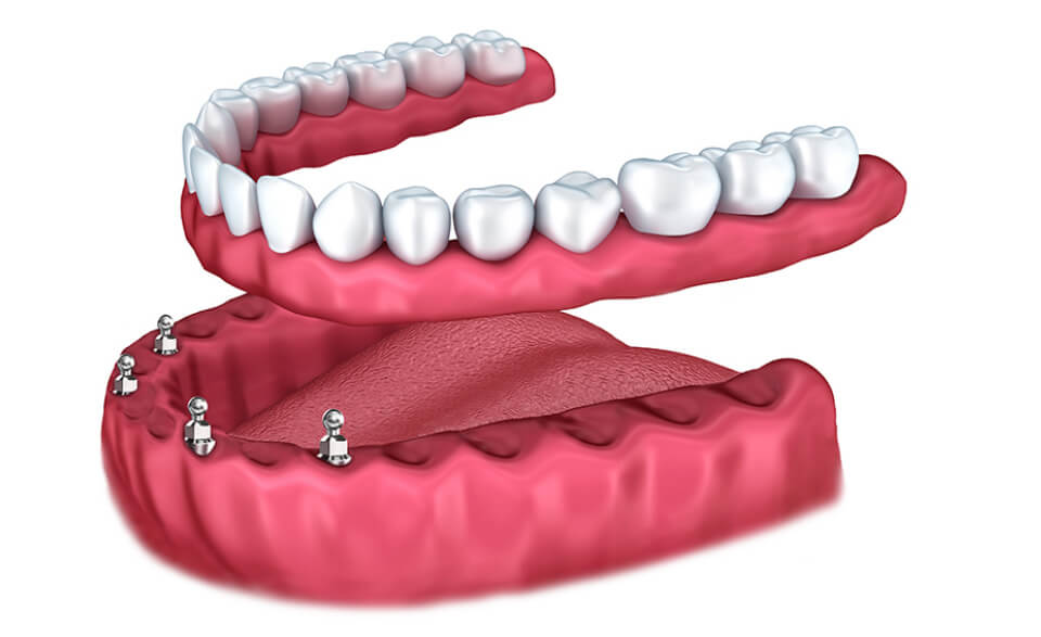 Immediate-Load-Implants