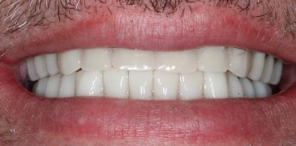 Implant-Patient-After