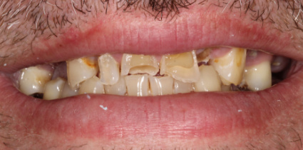 Implant-Patient-Before