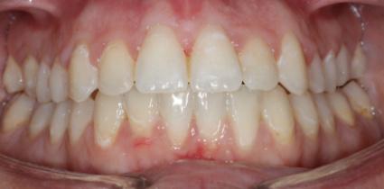 braces-patient-after