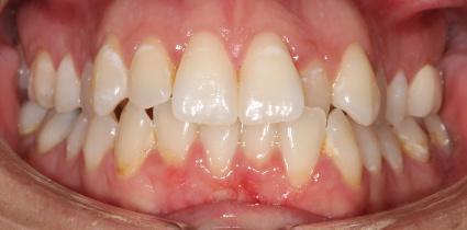braces-patient-before