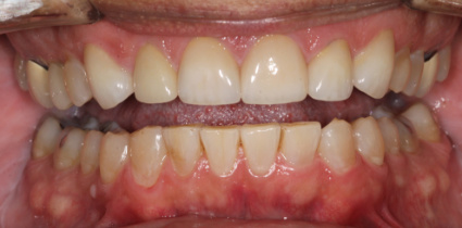cosmetic-patient-after